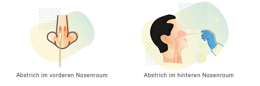 Antigen Test - Abstrich im vorderen Nasenraum